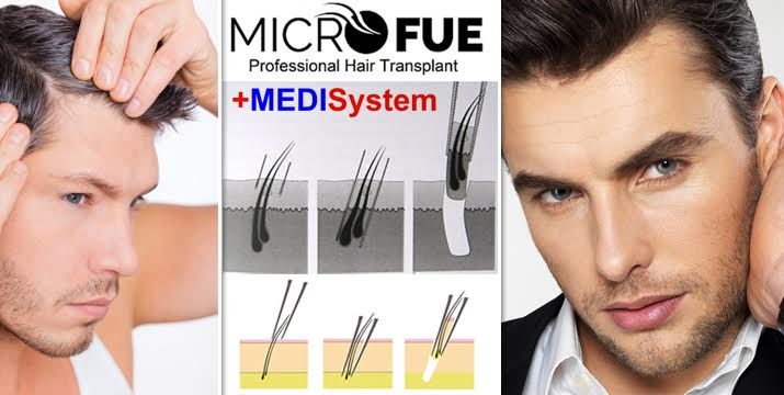 Μόνο 250€ από 1800€ (-86%) για την απόκτηση πλούσιων, φυσικών και υγειών μαλλιών,με εμφύτευση 100 θυλάκων (μέχρι και 4 τρίχες ανα θύλακα ) στην περιοχή της επιλογής σας ανώδυνα, χωρίς σημάδια ή ουλές με την κορυφαία μέθοδο micro F.U.E. από την εξειδικευμένη ιατρική ομάδα του Medisystem σε Άγιο Δημήτριο, Κηφισιά, Γλυφάδα και Αρτέμιδα! Εντελώς εξατομικευμένη διαδικασία που ανταποκρίνεται στις ανάγκες του πελάτη υπό την επίβλεψη του έμπειρου ιατρικού προσωπικού μας!