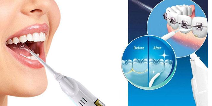 4,90€ από 11,90€ (-59%) για μια Συσκευή Καθαρισμού Δοντιών με Πίεση Νερού